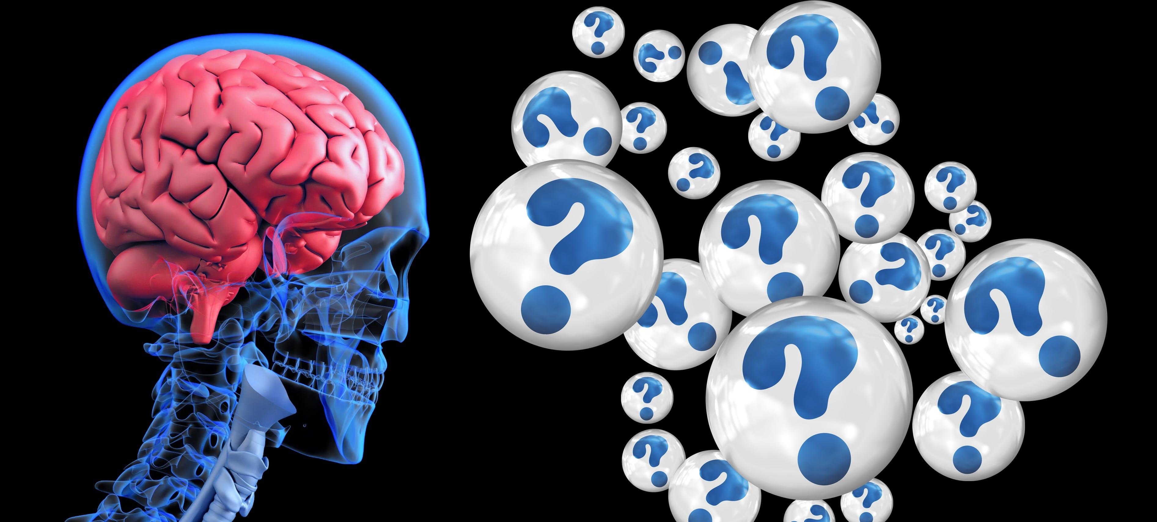 Titelbild-Gehirn-Skelett-Fragezeichen-Demenz-Alzheimer-2546101-pixabay-geralt